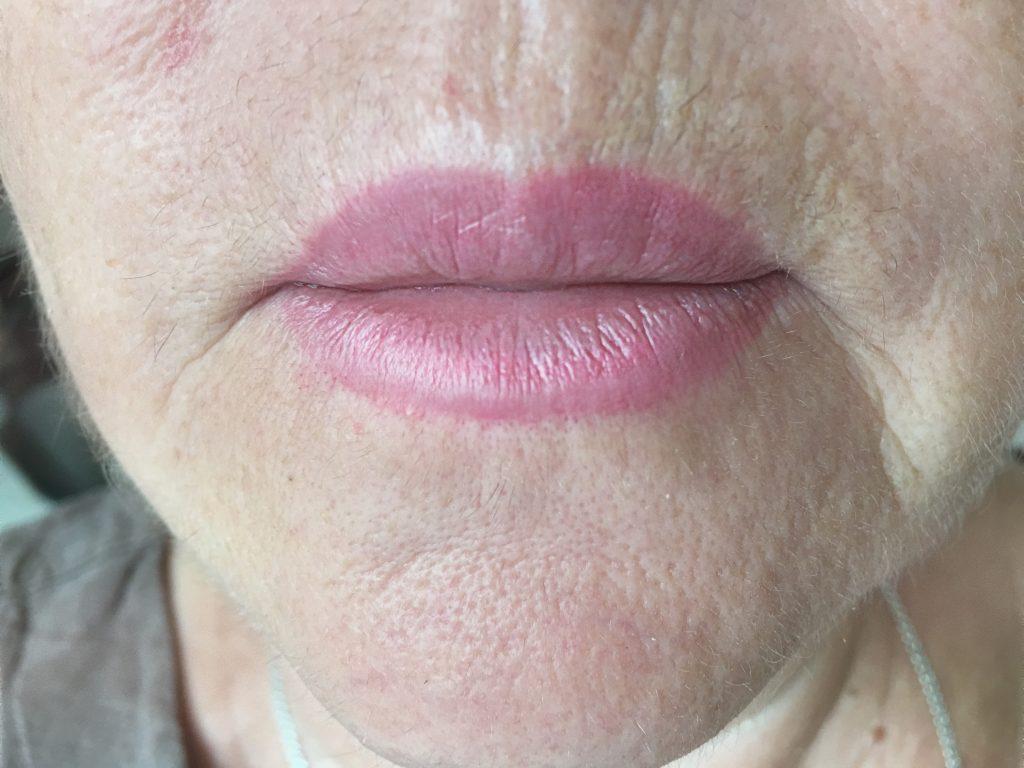 Синдром Зинаиды. Заживший перманентный макияж
