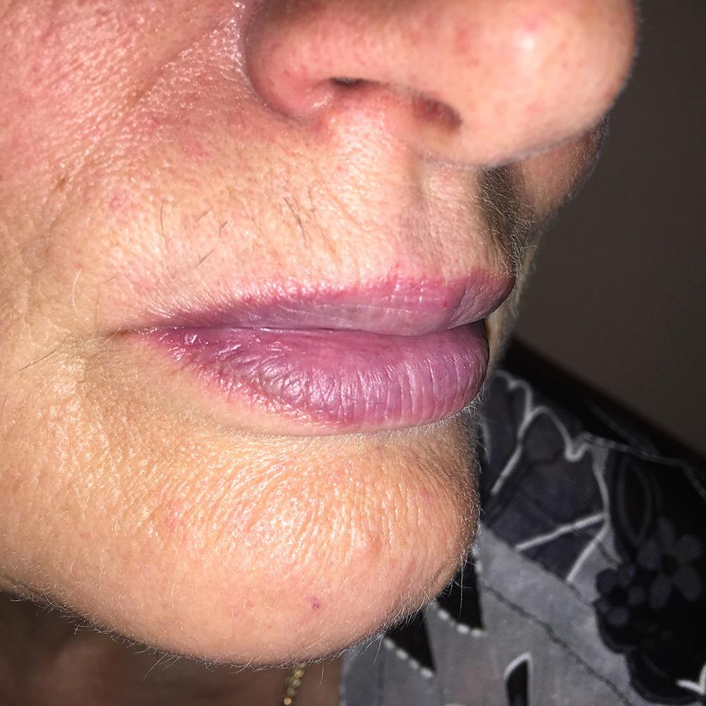 Синдром Зинаиды. Коррекция возрастных губ