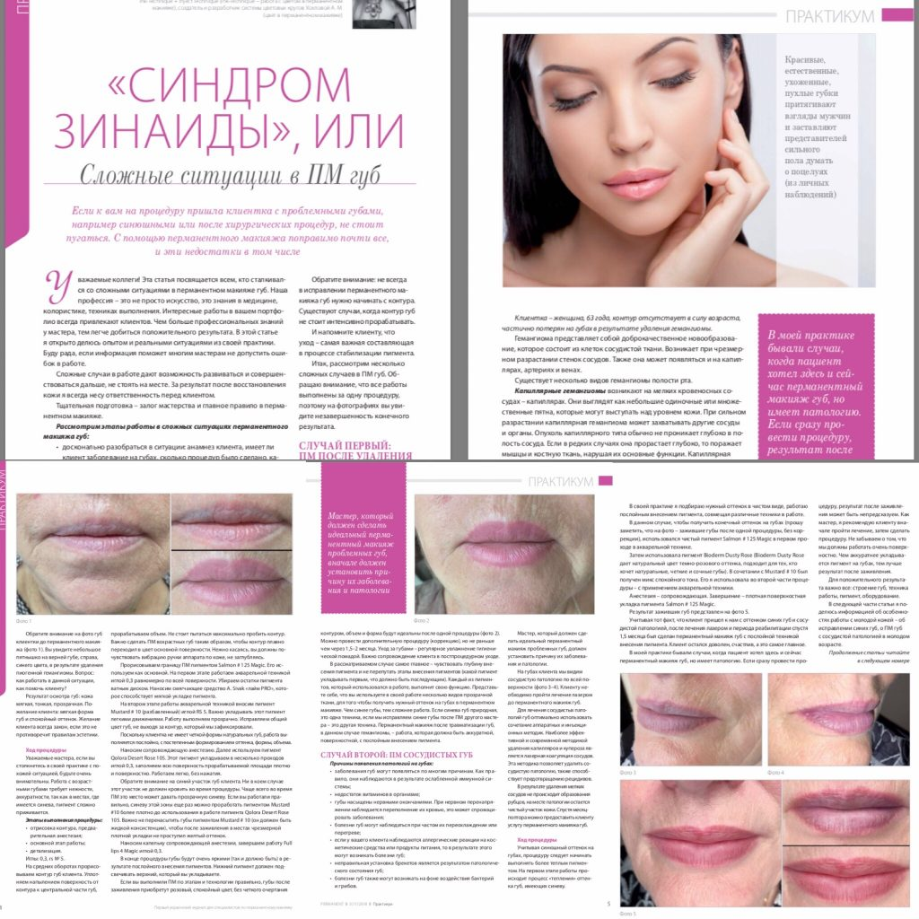 Синдром Зинаиды. Сосудистая патология губ