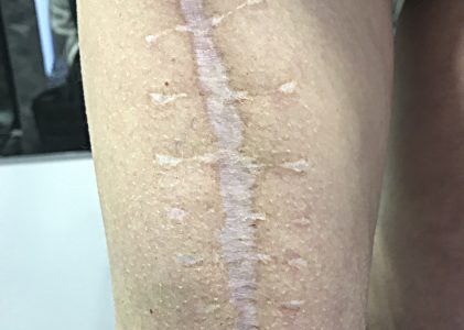INKJECT TECHNIQUE: reconstruction of scars