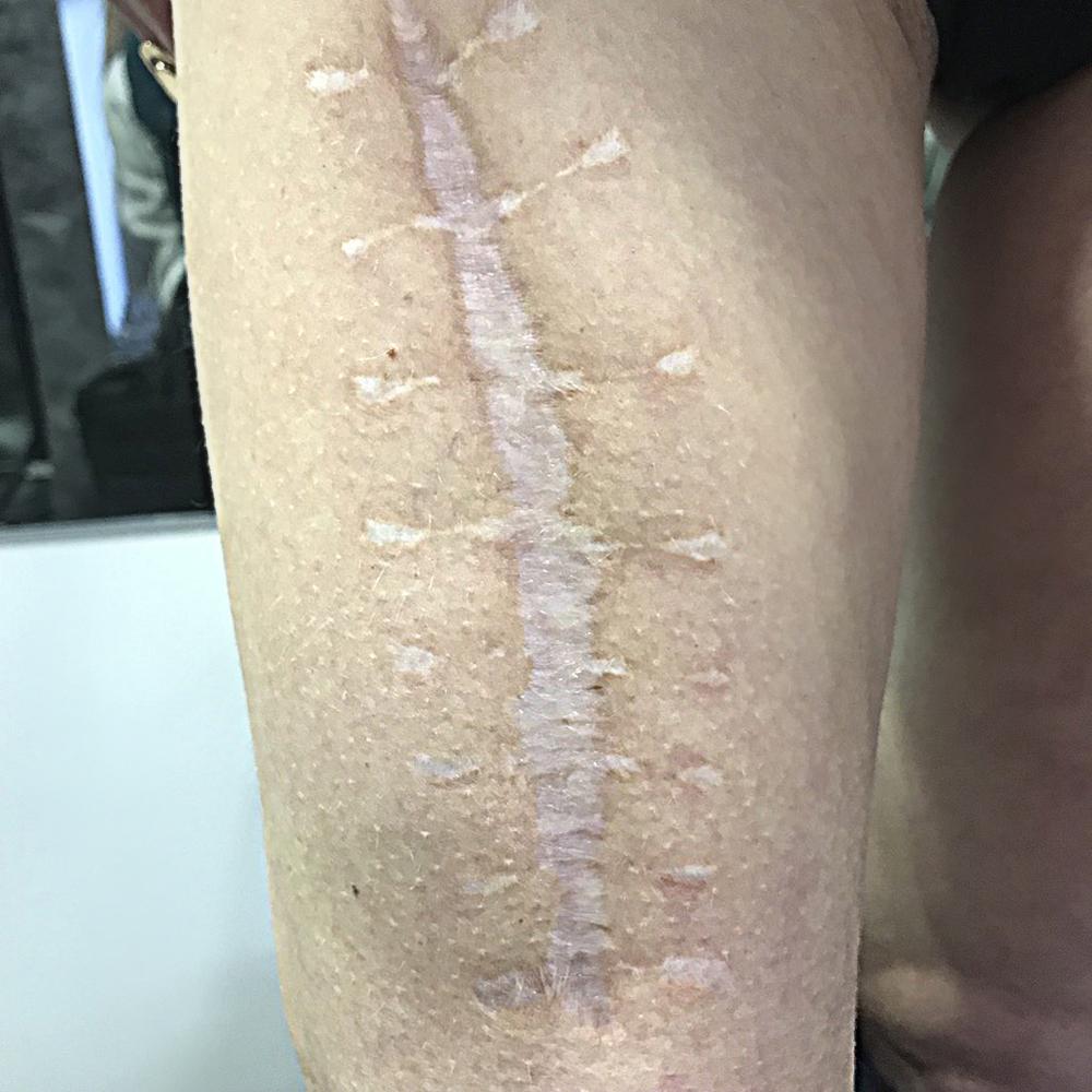 Реконструкция шрамов. Восстановление шрама. INKJECT TECHNIQUE. Дермопигментация