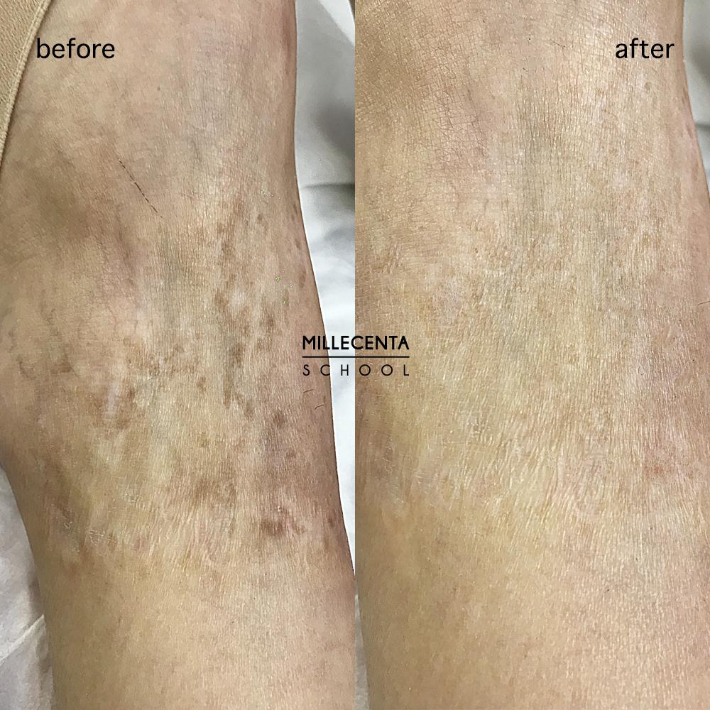 Шрам до и после дермопигментации. Медицинский татуаж. Реконструкция шрамов.