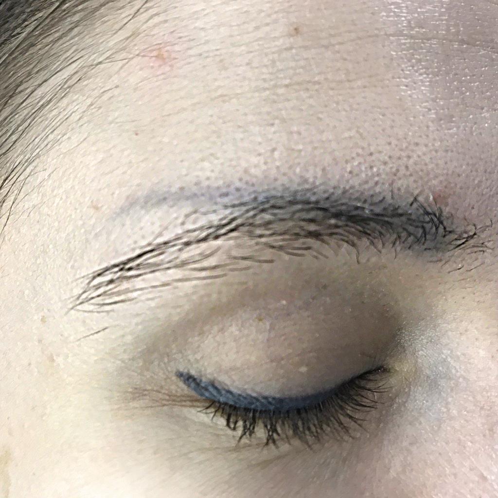 Удаление перманентного макияжа и татуировки