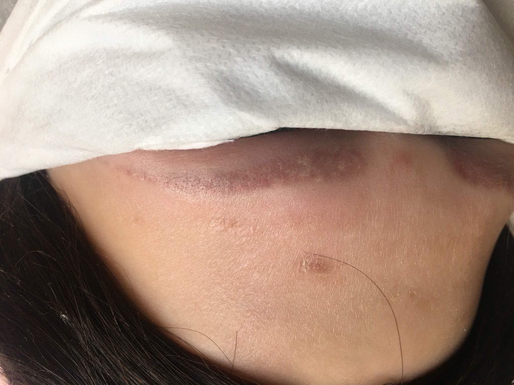 Удаление ремувером перманентного макияжа