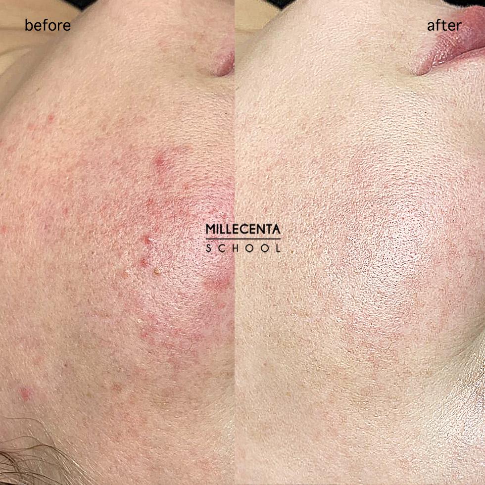 Лечение кожи лазером. Избавление от прыщей