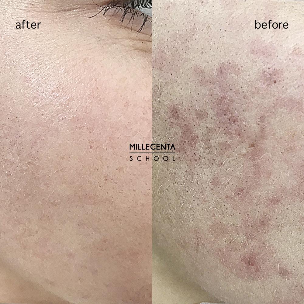 Использование лазера при заболевания кожи