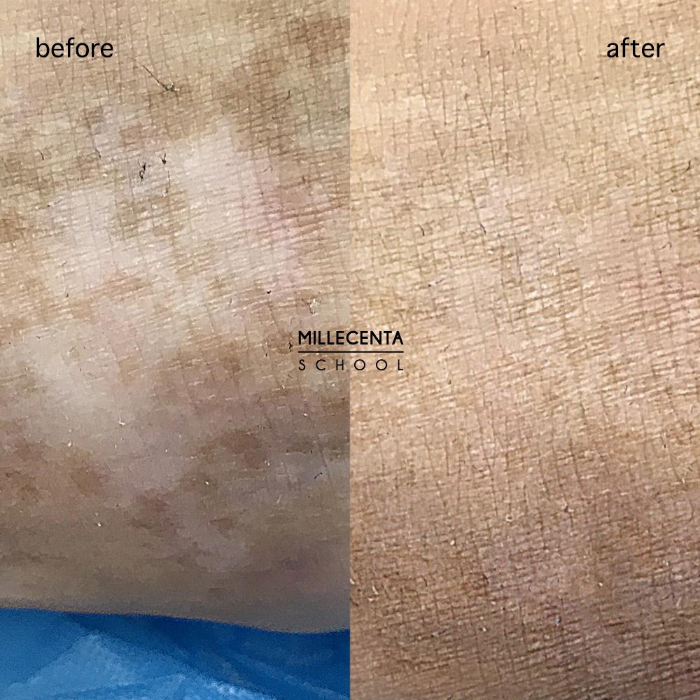 Реконструкция шрамов. Фото до и после медицинского татуажа. Дермопигментация кожи.