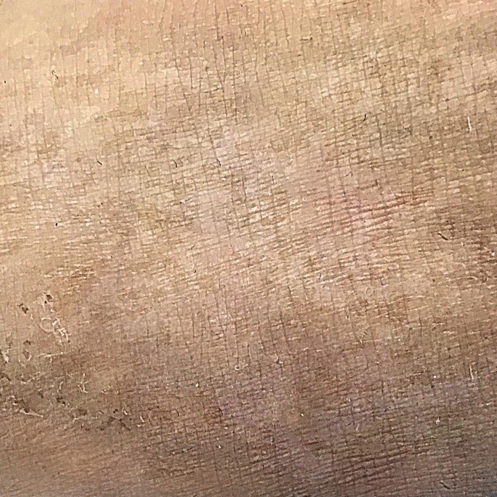 Исправление шрама. Фото после методики реконструкции шрамов.