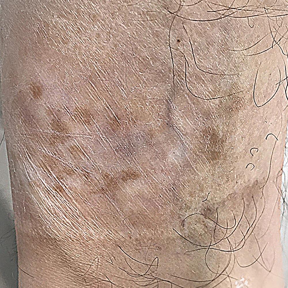 Реконструкция шрама. Восстановление шрама. Медицинский татуаж.