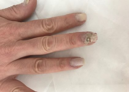 Грибок на ногтях: как вылечить? Онихомикоз