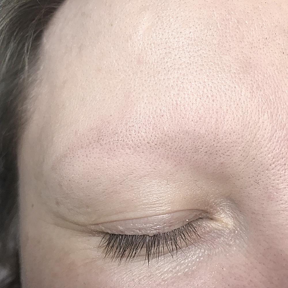Фото после восстановления кожи
