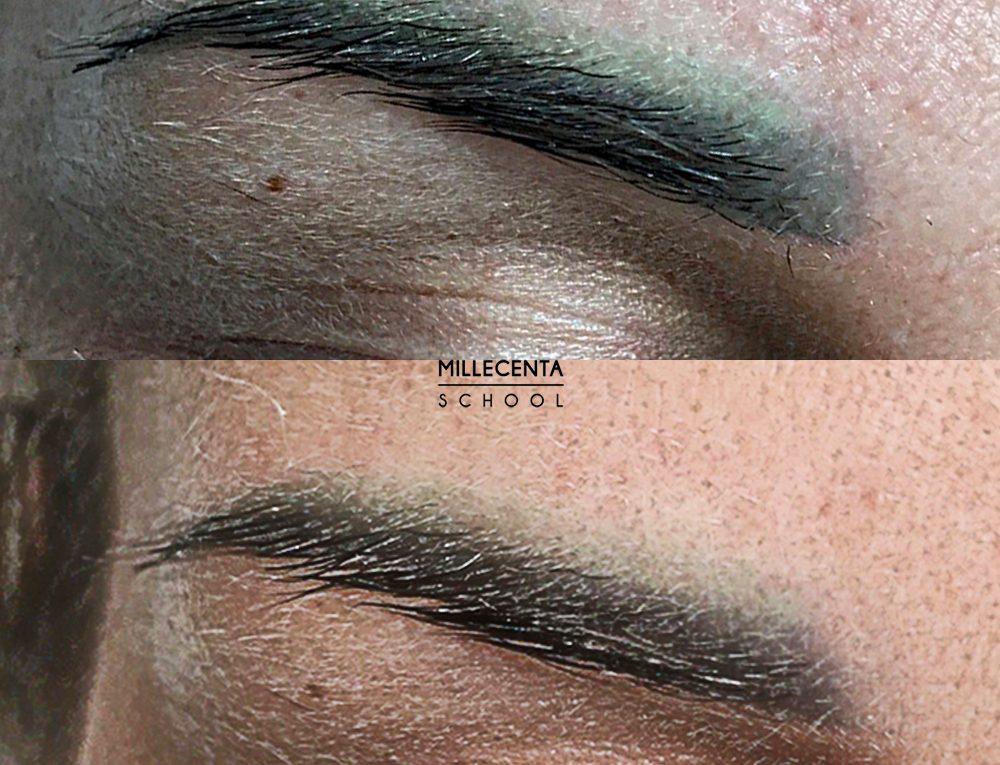 удаление перманентного макияжа на практике
