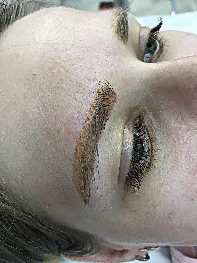 6. Так выглядят брови после удаления (3 процедура удаления) Это уже 4,5 месяца после первой процедуры удаления -  фото процедура удаления ремувером