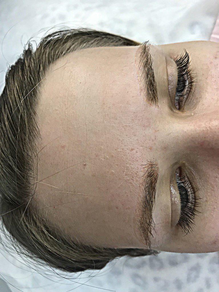 7. Так выглядят брови после удаления ремувером (после 3 процедуры удаления). Прошло 6 месяцев после удаления с 1 процедуры. Как видим процесс удаления пигмента пермабленд, айкалор достаточно сложный
