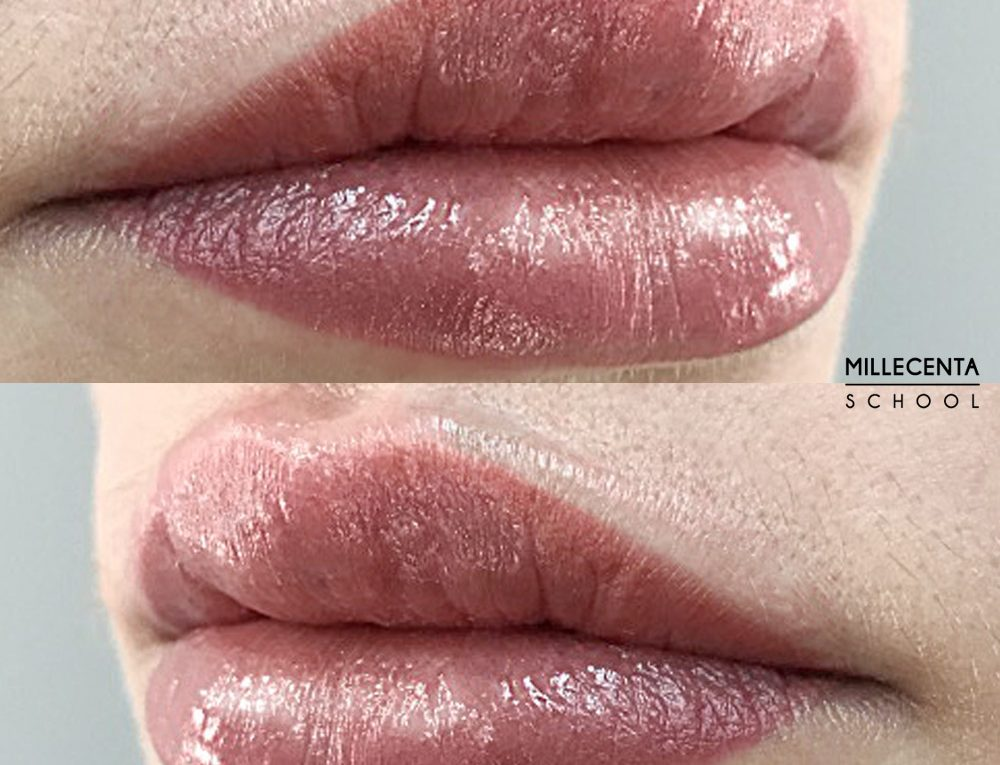 lip defect correction