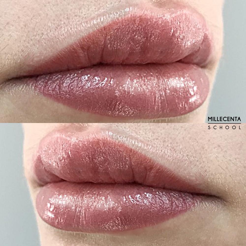 lip defect correction