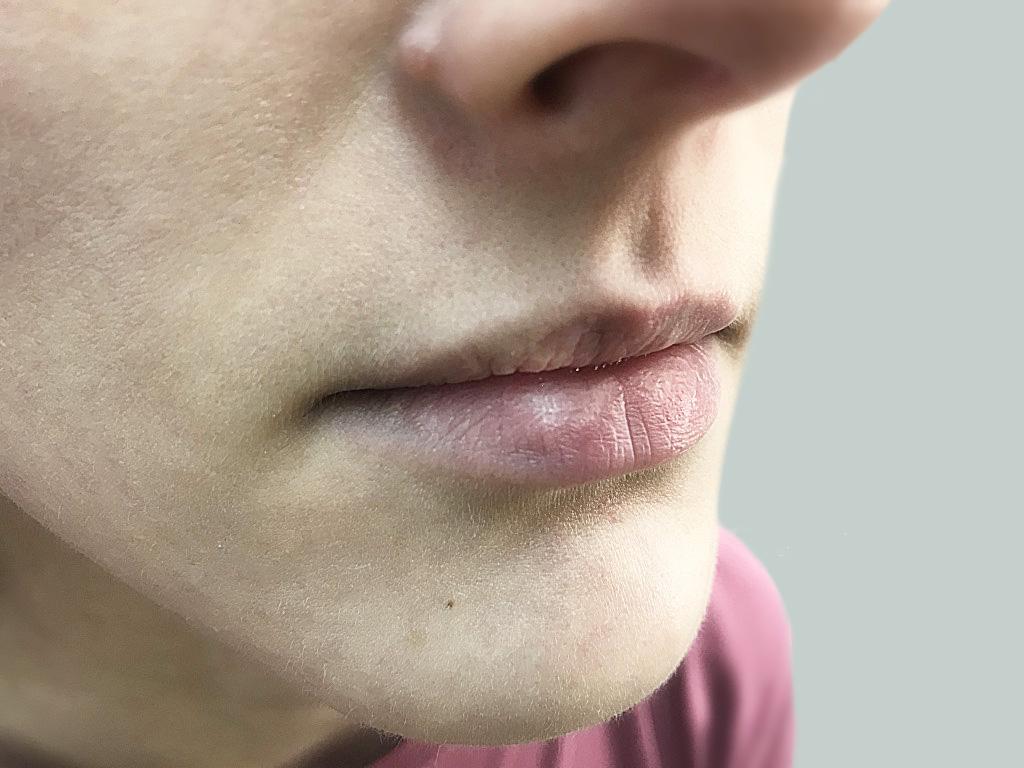 lip diseases. Fordyce granules on lips