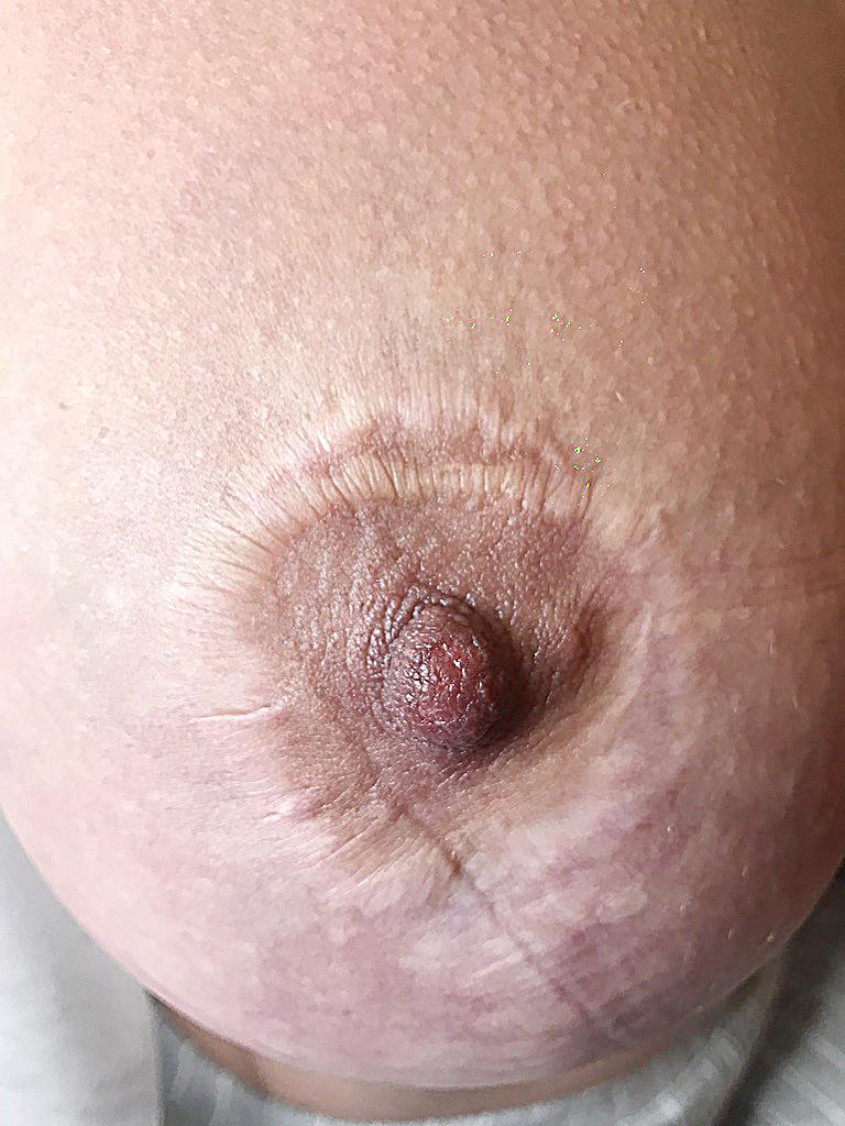 dermopigmentacja otoczki