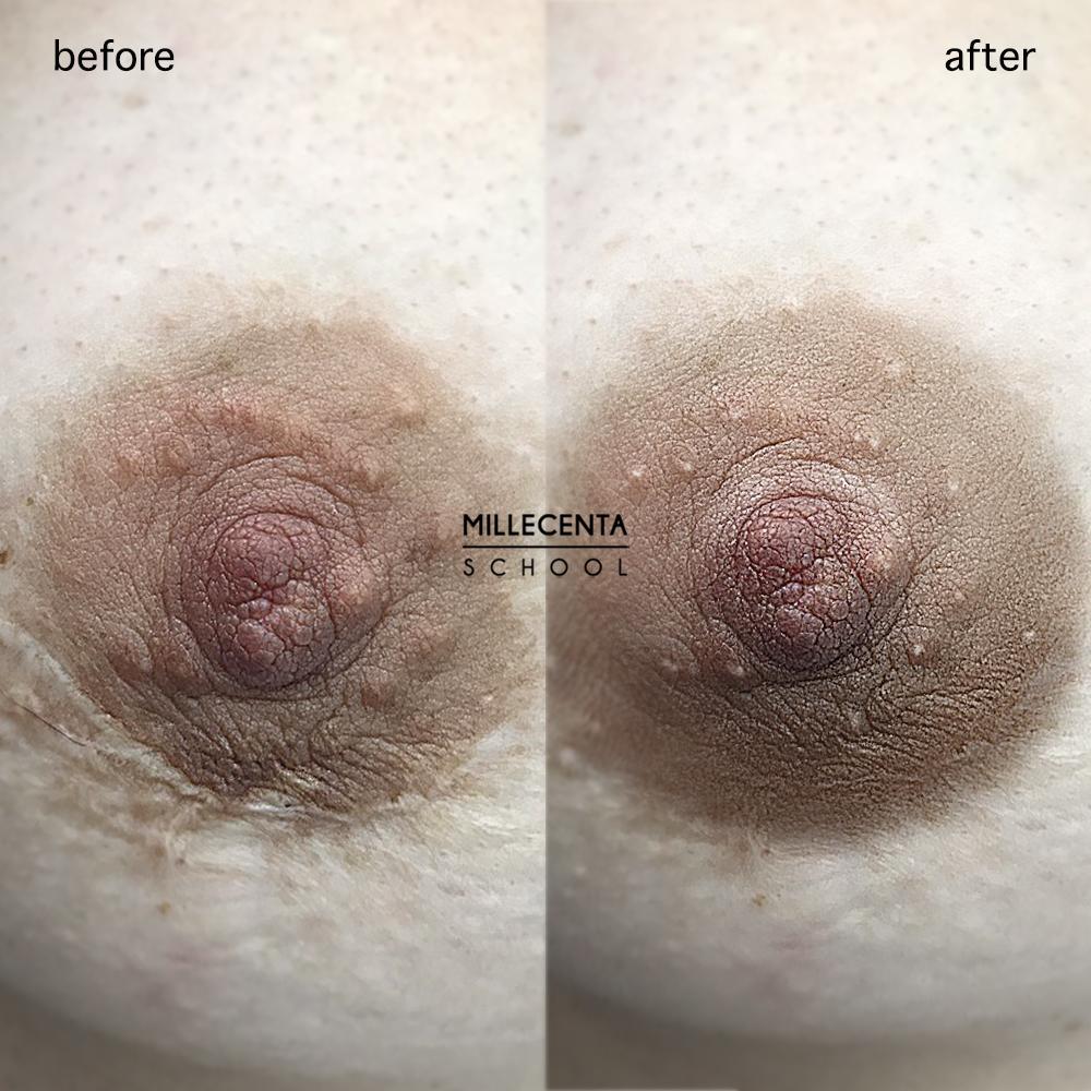 dermopigmentacja otoczki (Millecenta)