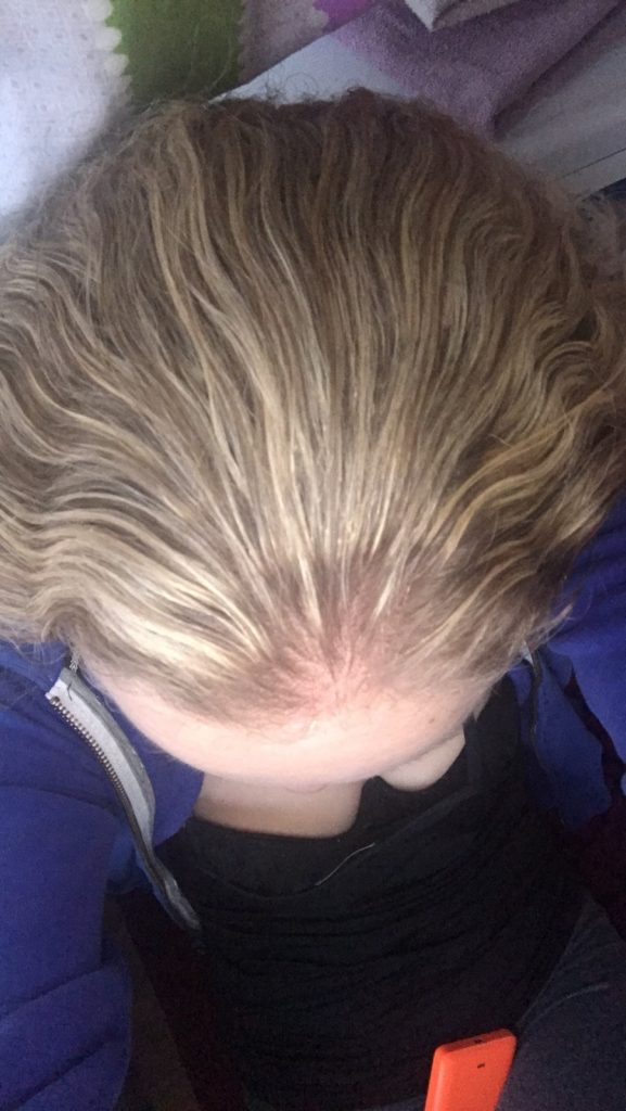 Некачественное мелирование волос