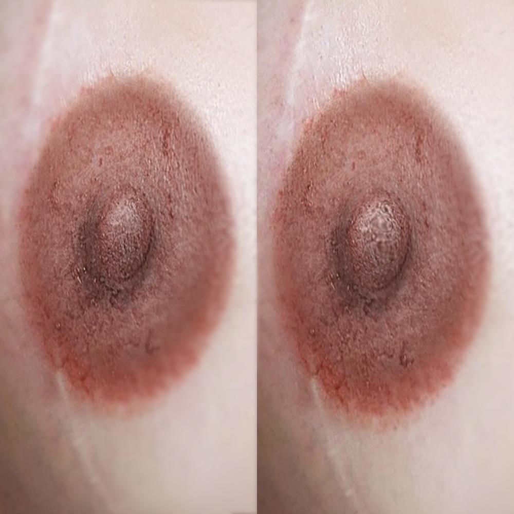 дермопигментация ареолы / dermopigmentation areola