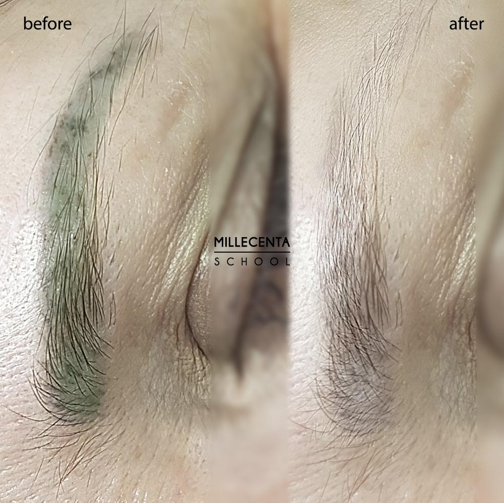 Как выбрать мастера исправить брови? Удаление зеленых бровей. Исправление некачественного татужа