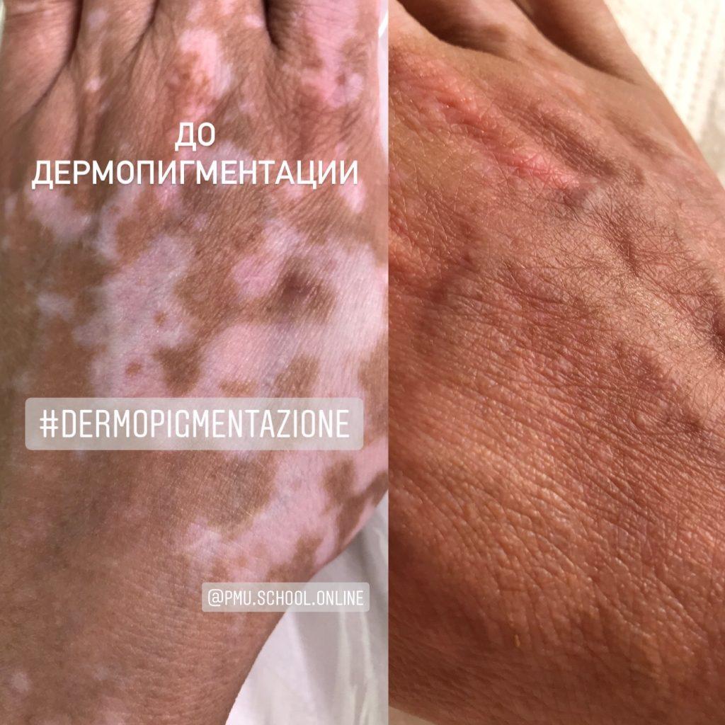 Коррекция Витилиго. Медицинский перманентный макияж