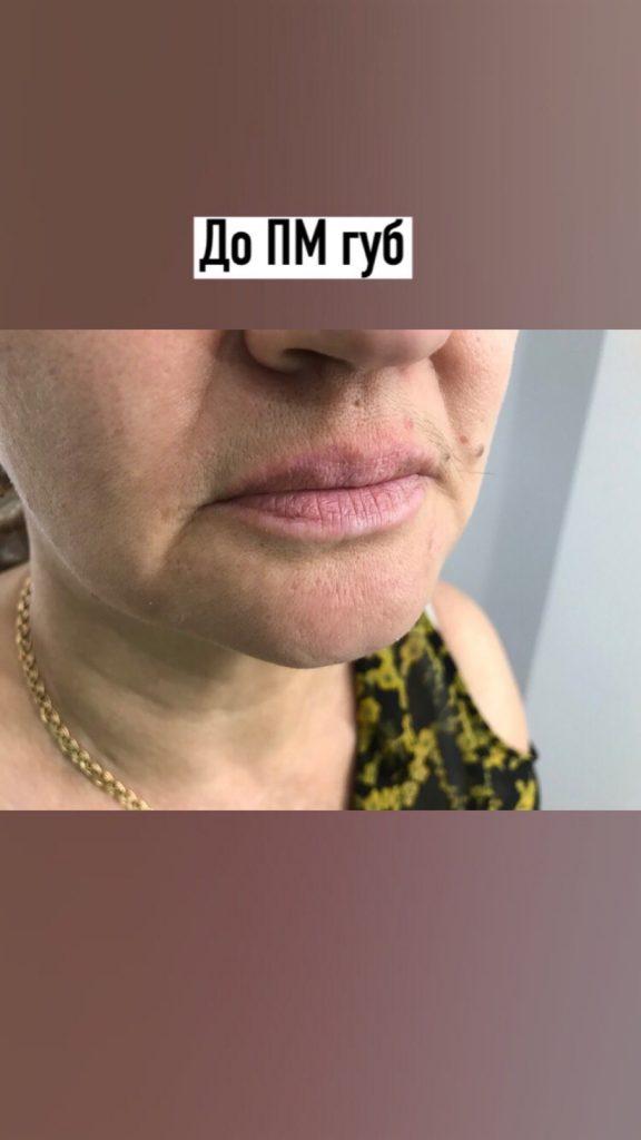 Фото возрастных губ до татуажа