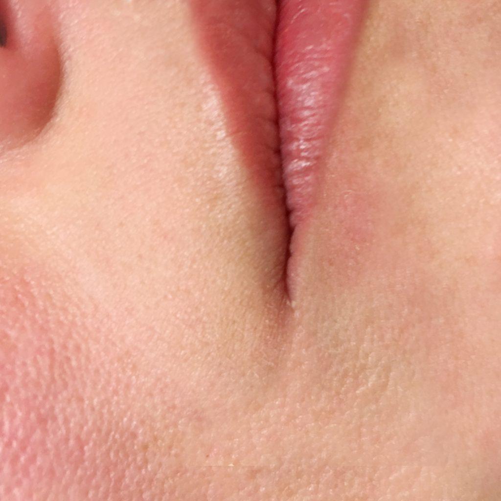 Губы после выведение перманентного макияжа