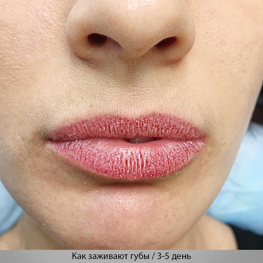 gojenia ust po makijażu permanentnym
