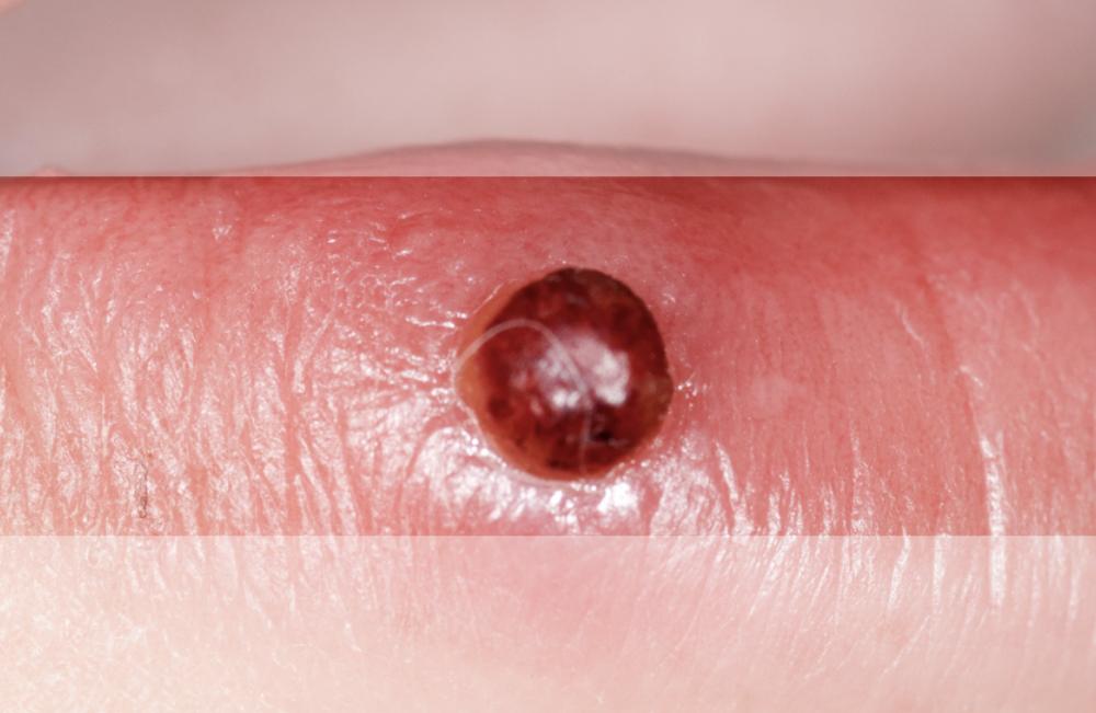 Пиогенная гранулема. Синдром Зинаиды