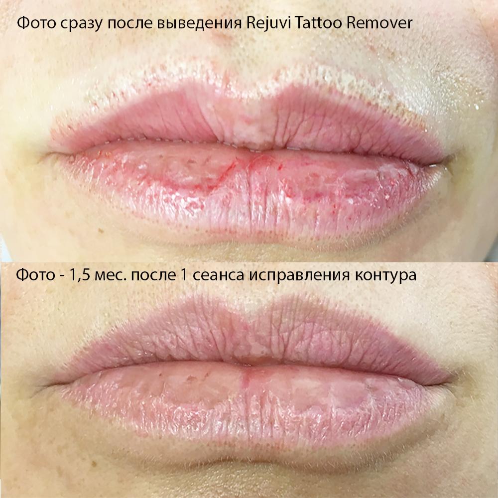 Выведение перманентного макияжа ремувером